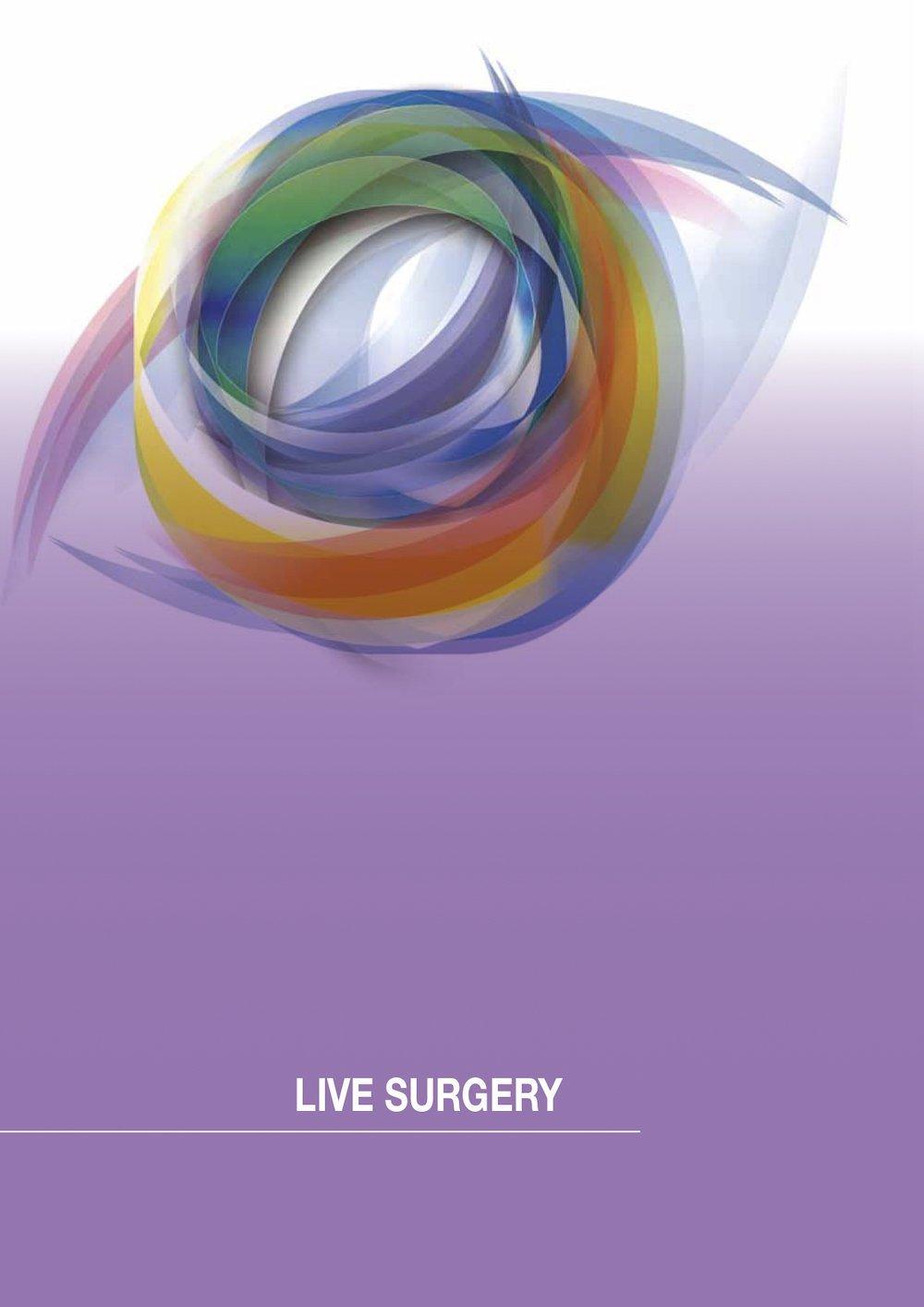 17 società oftalmologica italiana live surgery